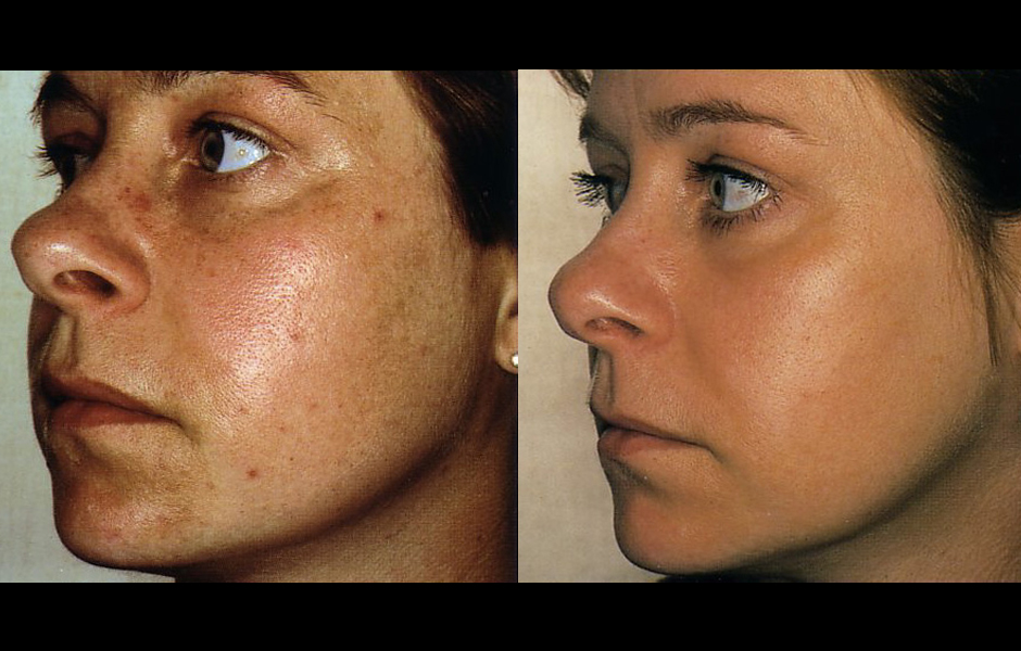 comment maigrir visage rapidement. Black Bedroom Furniture Sets. Home Design Ideas