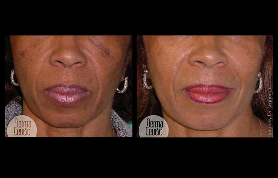 La pigmentation les blancs sur la peau de la photo