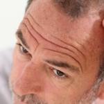 Traiter la perte de cheveux